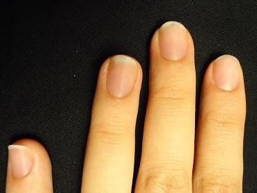 深爪矯正でこんなに手の印象が変わる
