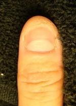 爪がない深爪矯正の変化画像
