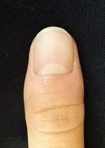 爪の変形の自爪矯正の変化画像