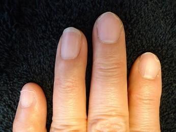 不健康になっていた短い爪が長い爪に