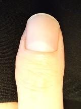 見て実感!深爪自立矯正で改善