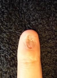 爪のでこぼこ矯正爪をむしる