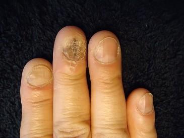 いつも隠してた爪のデコボコ
