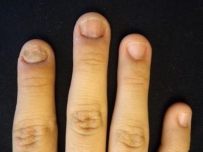 指先をいじってしまう癖