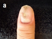 爪の様々な症状のあなたの爪は治る?か
