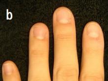 爪の様々な症状のあなたの爪は治る?