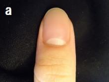 あなたの爪の症状深爪か爪の病気か
