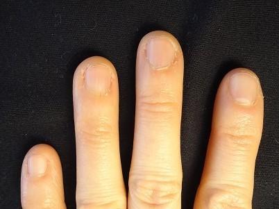 爪が大きく変化する矯正