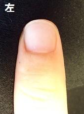 深爪矯正卒業爪の変化画像