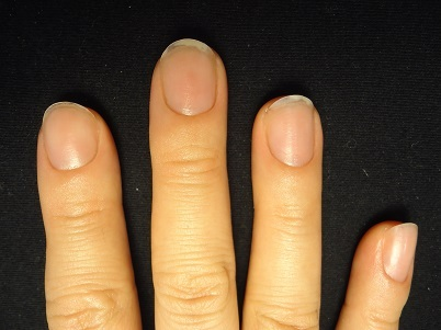 平らに広がった爪の変化