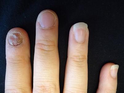生まれ変わった爪