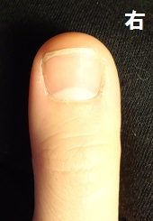 深爪矯正爪の変化画像