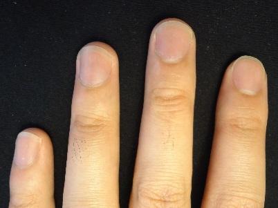 理想的な爪を追求した男性