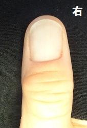 爪をいじる男性が感動した変化