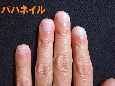 カイナメソッドによる深爪自立矯正を卒業された男性の爪の変化画像