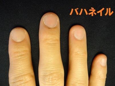 """爪をむしる癖の方の深爪矯正による爪の変化画像"""""""""""