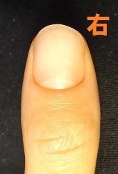 爪をむしる癖の方の深爪矯正による爪の変化画像