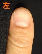 爪を噛む癖が原因で深爪になった男性の矯正の変化画像