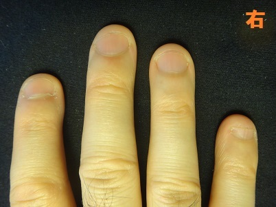 深爪を治した男性の深爪矯正の変化画像