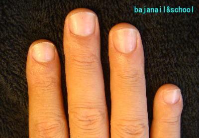 横長の深爪から縦長の爪へ変われるカイナメソッドによる深爪自立矯正