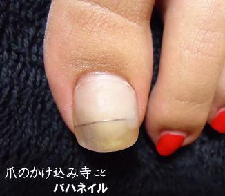 足の巻爪矯正の変化画像