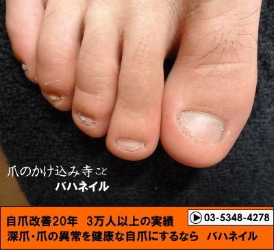 カイナメソッドによる足の深爪矯正終了時の変化画像