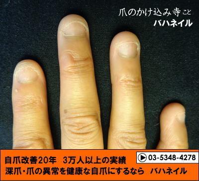 カイナメソッドによる深爪自立矯正の変化画像!爪噛みborder=