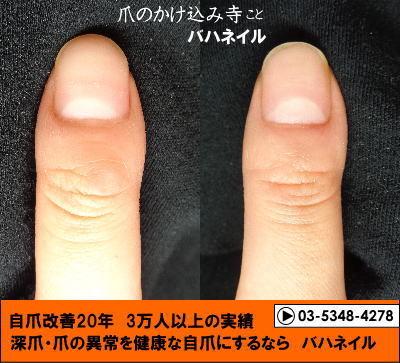 爪のデコボコはバハネイルの矯正で治る
