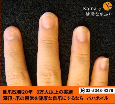 カイナで男自爪改善