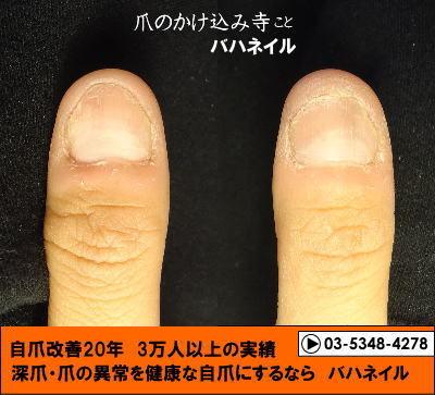 爪噛みの深爪矯正の変化画像