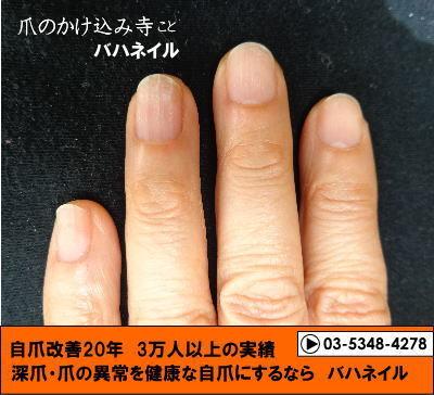 カイナメソッドで深爪矯正をした爪の変化画像