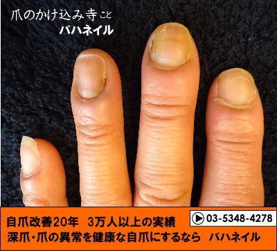 深爪矯正のカイナメソッドで深爪を治そう
