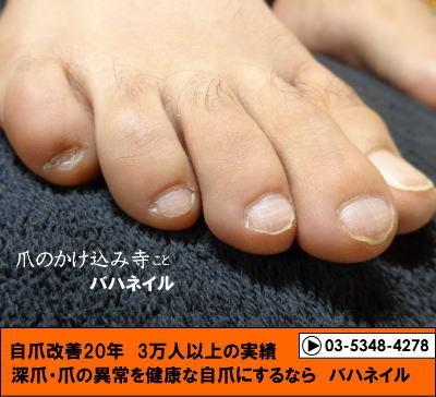 男性のゲスト 足の深爪自立矯正の変化画像