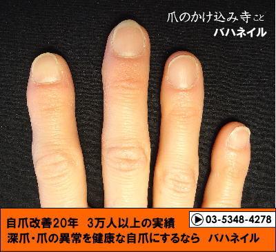 深爪自立矯正の変化画像☆カイナメソッド