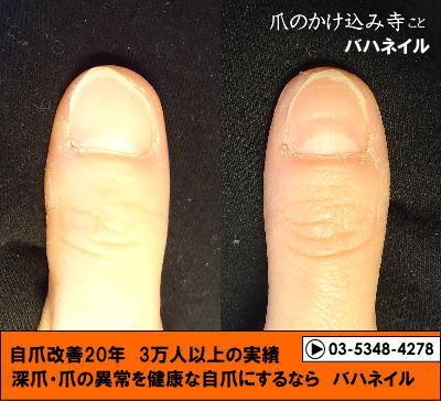 深爪自立矯正の変化画像☆カイナメソッド像