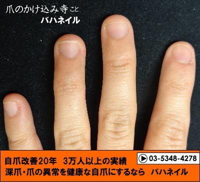 深爪自立矯正(カイナメソッド)の変化画像