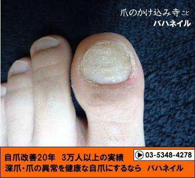 足の親指の爪のデコボコの変化画像