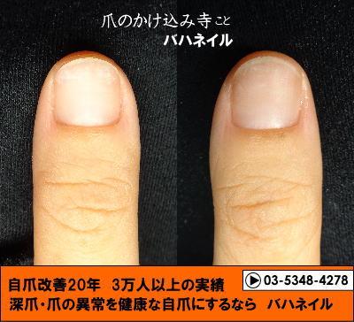 カイナメソッドによる深爪自立矯正の変化画像