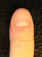 深爪を綺麗な自爪に治す深爪自立矯正