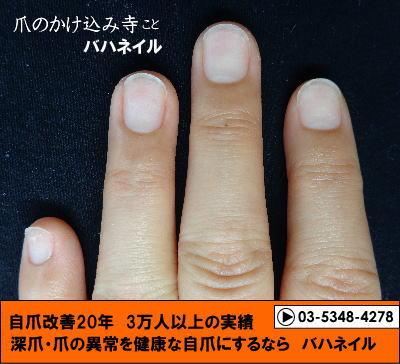 深爪自立矯正(カイナメソッド) 爪の変形 変化画像