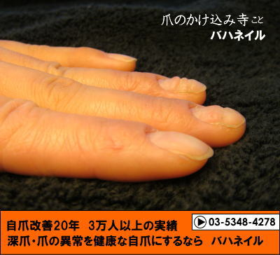 皮膚湿疹で爪がボコボコになるお客様のアンケート