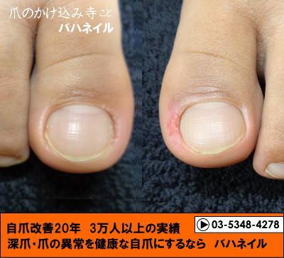 足の小指の爪が小さい人の足の深爪矯正