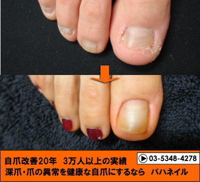 足の爪のコンプレックスを解消!カイナメソッドによる足の深爪自立矯正 変化画像あり