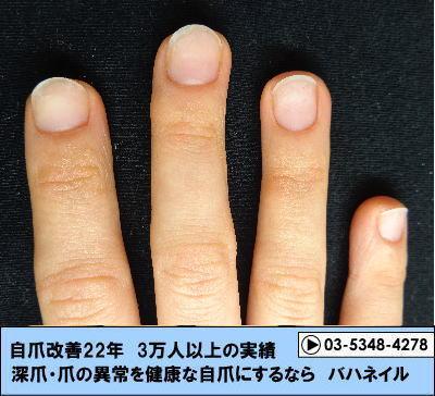 手汗も深爪になる一つの原因