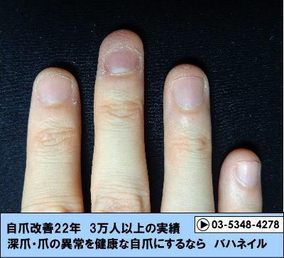 男性の深爪