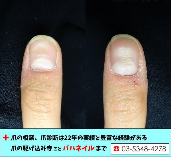 指先の乾燥で爪が凹む