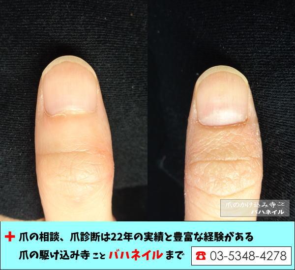感動の爪の変化、手荒れのお悩み
