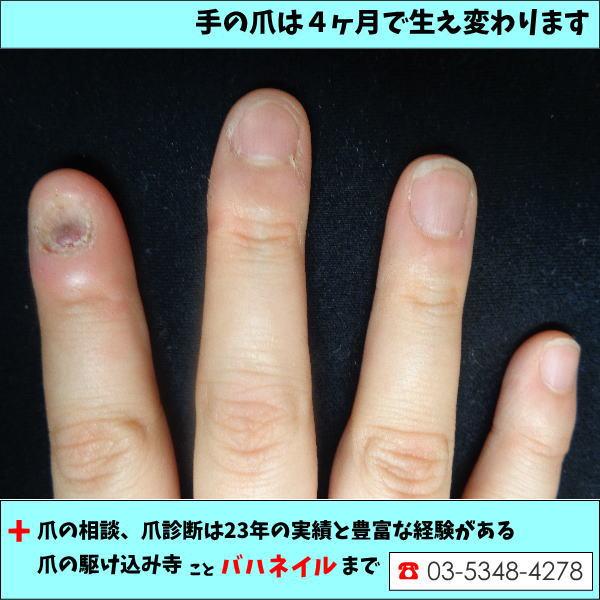 4ヶ月で爪がこんなに早く伸びる