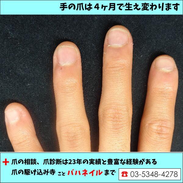 子供の深爪、噛み癖を治したい。