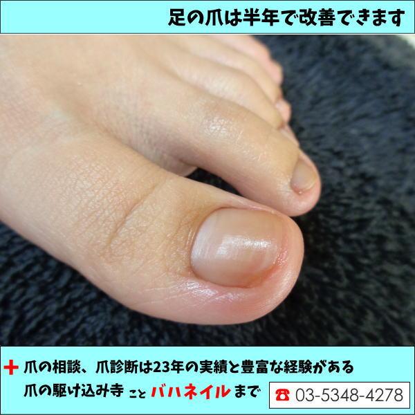 足の爪が厚くなる(爪甲鈎湾症)